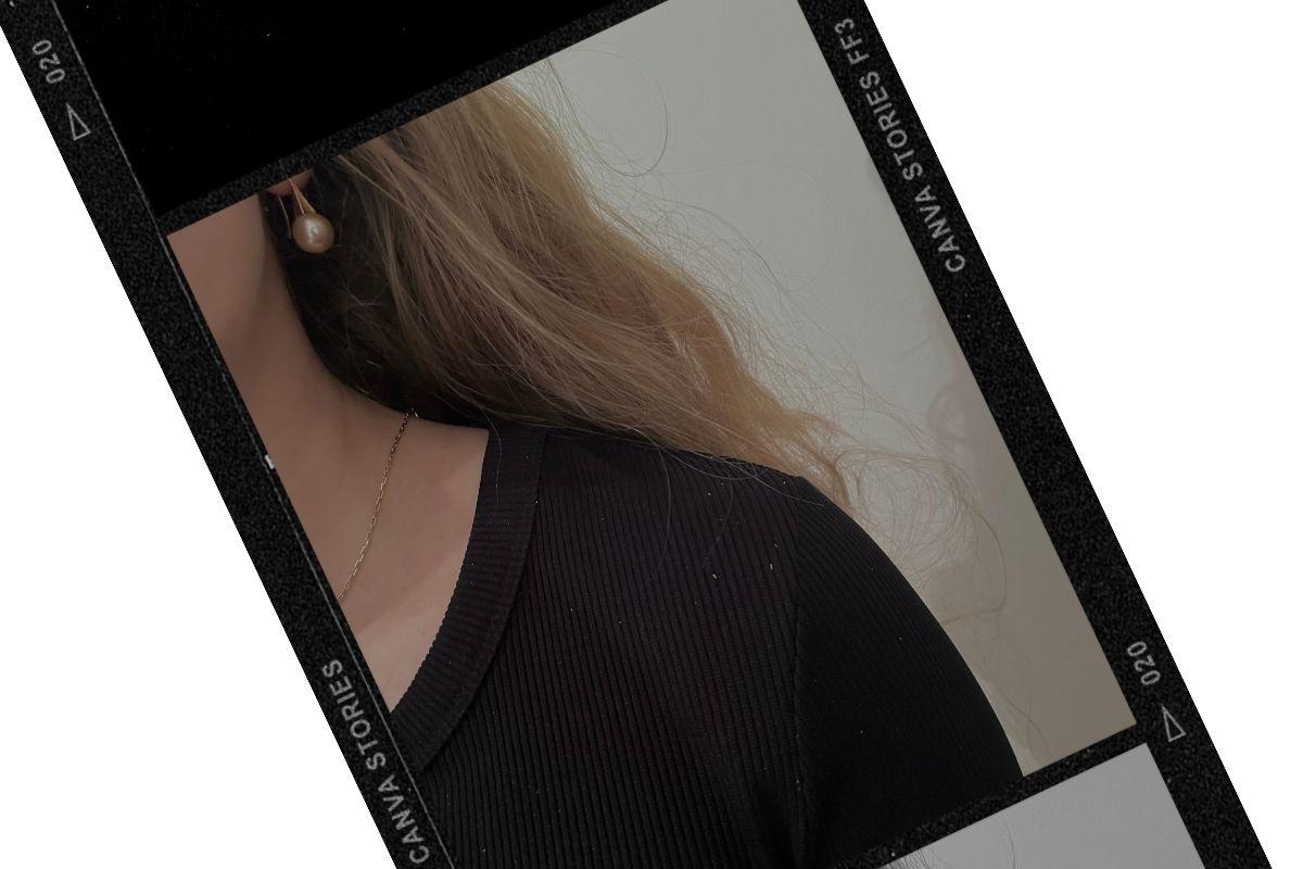 Head&Shoulders na lupy? Test s černým oblečením.